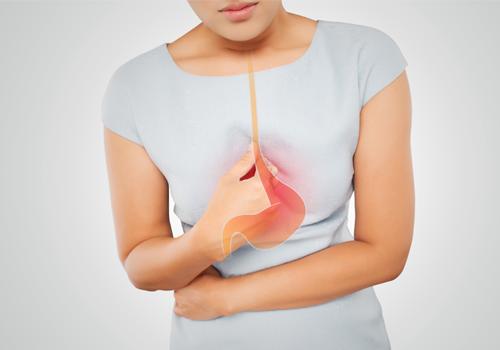 hội chứng trào ngược dạ dày thực quản