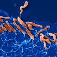 ăn gì diệt vi khuẩn hp hiệu quả