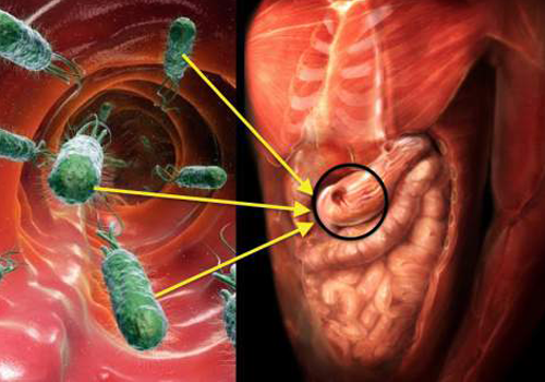 vi khuẩn hp nguy nhiễm như thế nào