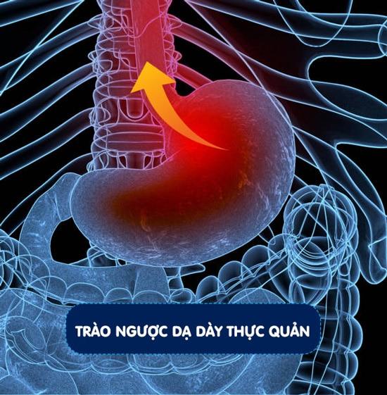Trào ngược dạ dày thực quản (GERD)