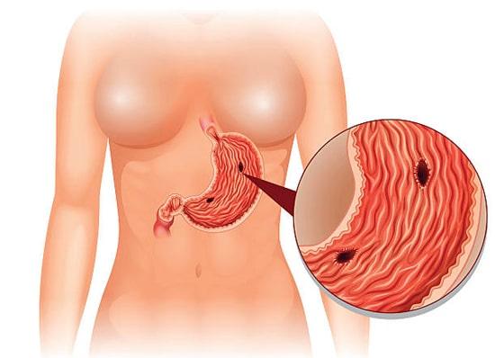 Đau dạ dày có thể gây ra đau lưng thường là do viêm loét dạ dày dẫn tới