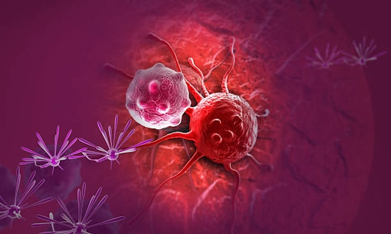 Đau dạ dày từng cơn do các bệnh lý trên mà không được xử lý sớm có thể dẫn đến ung thư dạ dày
